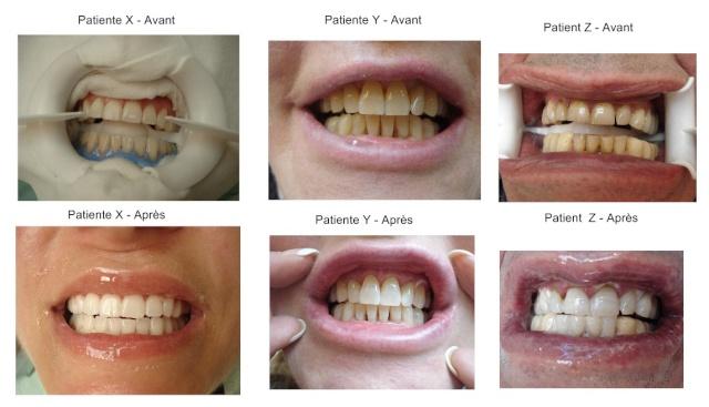 dentiste blanchiment des dents paris